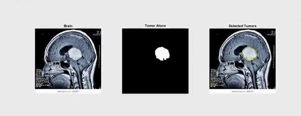 تشخیص تومور مغزی با پردازش تصویر