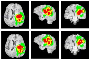 شناسایی تومور با پردازش تصویر